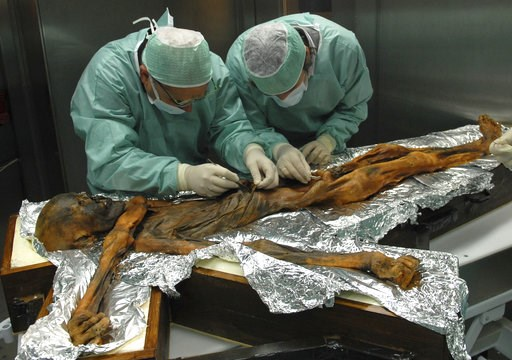 (Marco Samadelli/Eurac/South Tyrol Museum of Archaeology via AP). In this November 2010 photo provided by the South Tyrol Museum of Archaeology, researchers examine the body of a frozen hunter known as Oetzi the Iceman to sample his stomach contents in...