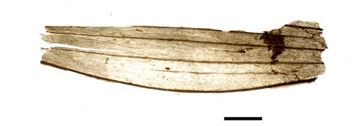 (Marco Samadelli/Eurac/South Tyrol Museum of Archaeology via AP). This undated microscope photo provided by the South Tyrol Museum of Archaeology in July 2018 shows part of a wheat grain spikelet found in the stomach of the frozen hunter known as Oetzi...