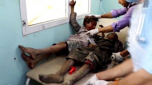 (AP Video via AP). This image made from video taken on Thursday, Aug. 9, 2018, shows a child injured in an airstrike being treated at a hospital in Saada, Yemen. Yemen's Shiite rebels are backing a United Nations' call for an investigation into a Saudi...