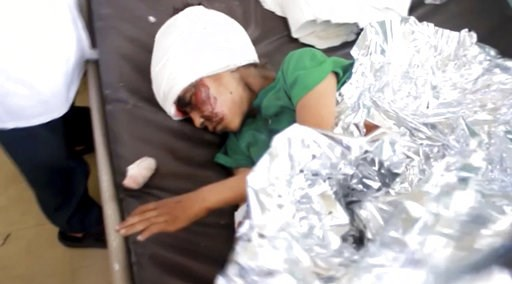 (AP Video via AP). This image made from video taken on Thursday, Aug. 9, 2018, shows a child injured in an airstrike resting at a hospital in Saada, Yemen. Yemen's Shiite rebels are backing a United Nations' call for an investigation into a Saudi-led c...