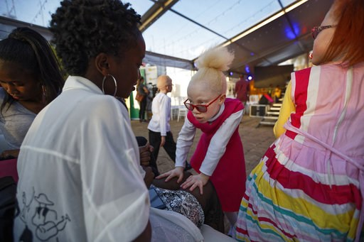 (AP Photo/Ben Curtis). Albino girl Shirlyne 7, looks up at her aunt, left, and asks her to paint her nails as she waits for the start of the Mr. & Miss Albinism East Africa contest, organized by the Albinism Society of Kenya, in Nairobi, Kenya Frid...