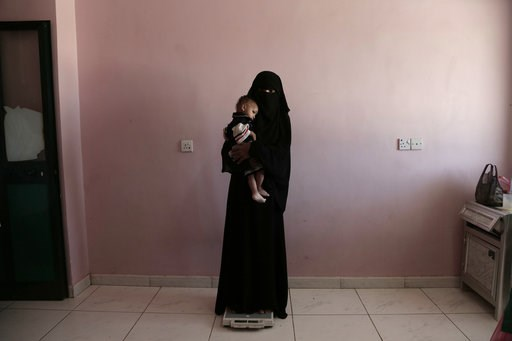 (AP Photo/Nariman El-Mofty, File). FILE - In this Feb. 13, 2018, file, photo, Umm Mizrah, a 25-year-old Yemeni woman, holds her son Mizrah on a scale in Al-Sadaqa Hospital in the southern Yemen city of Aden in this Feb. 13, 2018 photo. Envoys from Yeme...