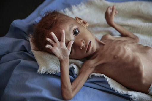 (AP Photo/Hani Mohammed, File). FILE - In this Oct. 1, 2018, file, photo, a severely malnourished boy rests on a hospital bed at the Aslam Health Center, Hajjah, Yemen. Envoys from Yemen's warring parties are headed to Sweden for another round of peace...