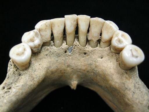 (Christina Warinner/Max Planck Institute for the Science of Human History via AP). This undated photo released by the Max Planck Institute for the Science of Human History in Jena, Germany, shows the dental calculus on the lower jaw where a medieval wo...