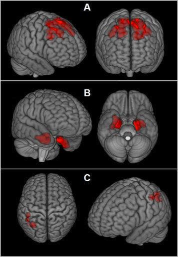 (The New England Journal of Medicine via AP). This image provided by The New England Journal of Medicine in April 2019 shows an illustration based on brain scans from former NFL players. As a group, they were found to have higher levels of an abnormal ...