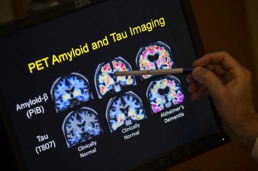 (AP Photo/Evan Vucci, File). FILE - In this May 19, 2015, file photo, a doctor points to PET scan results that are part of a study on Alzheimer's disease at a hospital in Washington. Scientists know that long before the memory problems of Alzheimer's b...