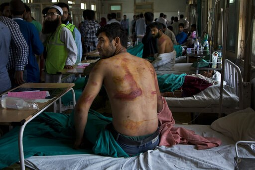 (AP Photo/Dar Yasin, File). FILE - In this Aug. 18, 2016 file photo, Sameer Ahmed, a Kashmiri man allegedly beaten up by Indian soldiers at Khrew village, recovers at a local hospital in Srinagar, Indian controlled Kashmir. A prominent rights group in ...